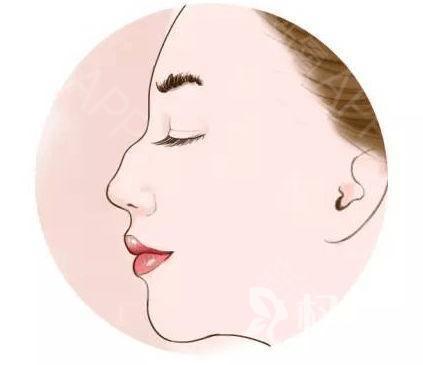 大連駝峰鼻矯正需要多少錢 術后效果滿意嗎