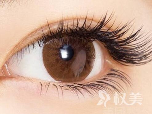 广州新生植发医院睫毛种植 重塑迷人电眼