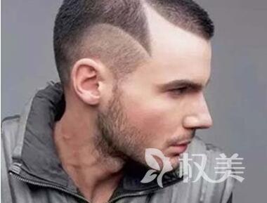 北京植发头发哪家医院更专业 北京壹加壹做鬓角种植多少钱