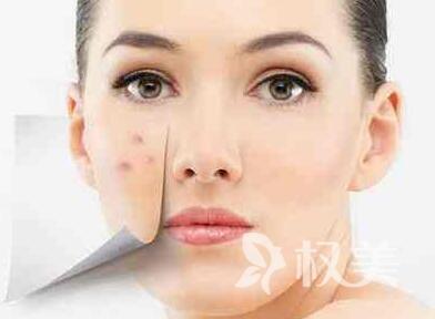 痘坑修复水果酸换肤效果怎么样 果酸换肤能维持多久