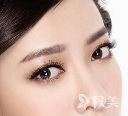 荆州名韩整形医院全切双眼皮多少钱 几天消肿