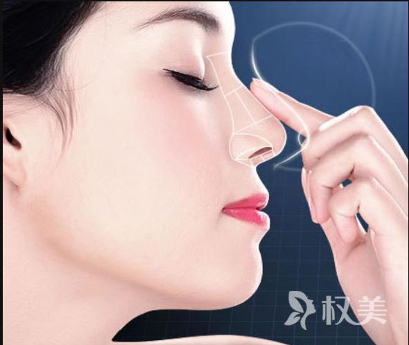 鼻翼縮小術的價格 費用在3000元到8000元之間