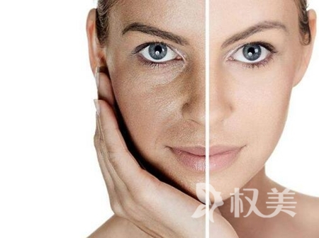 惠州瑞芙臣整形醫院彩光嫩膚多少錢 效果能保持多久