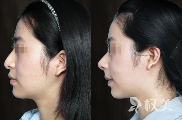 興義人民醫院科去眼袋手術怎么做 讓眼袋消失無影無蹤