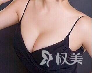 杭州做胸部整形要多少钱 副乳切除术价格贵不