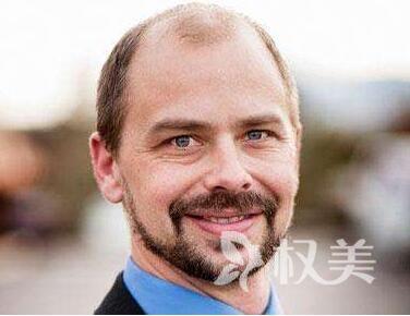 植发危害有哪些 广州广大亿美做鬓角种植安全吗