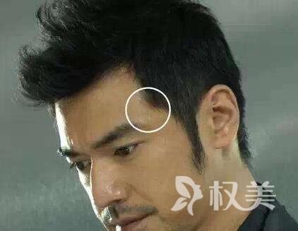上海科发源毛发移植专家排名 上海做鬓角种植多少钱