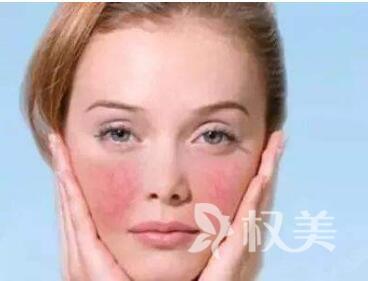 如何去除脸上的红血丝  沧州奥拉克整形医院激光去红血丝效果如何