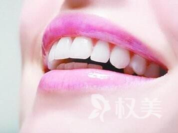 成都锦江极光口腔整形医院做矫正牙齿的价格