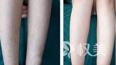 九江第一人民医院整形科额头激光脱毛多少钱 怎么护理