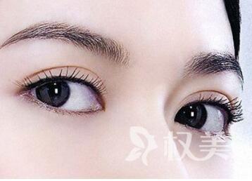 雙眼皮手術方法有哪些  唐山金鳳凰整形醫院埋線雙眼皮手術有那些優勢