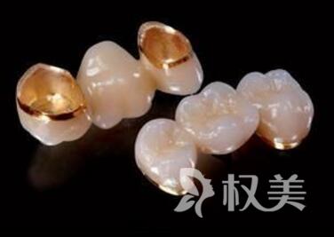 唐山美泉整形醫院鈷鉻合金烤瓷牙的優點  壽命可以保持多久