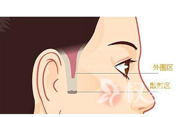 鬓角可以种植吗  南昌瑞丽诗植发医院鬓角种植的技术有哪些