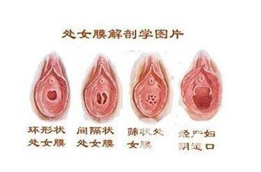 處女膜能修復嗎  唐山花都整形醫院處女膜修復術優勢有哪些