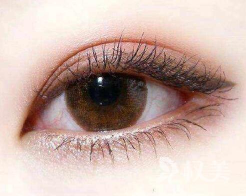 天津河東醫學整形埋線法做雙眼皮費用  多久恢復