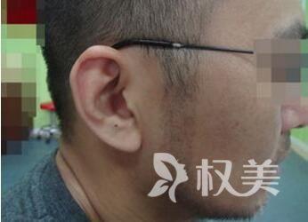 北京红旗植发医院鬓角种植效果好吗  术后注意事项有哪些