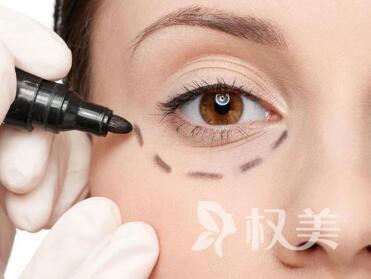 唐山紫水仙整形醫院外切去眼袋的獨特優勢  恢復時間要多久