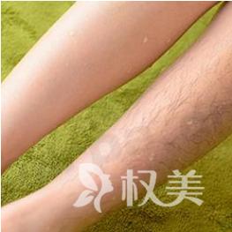 北京激光脱毛是永久的吗 正规整形医院怎么收费