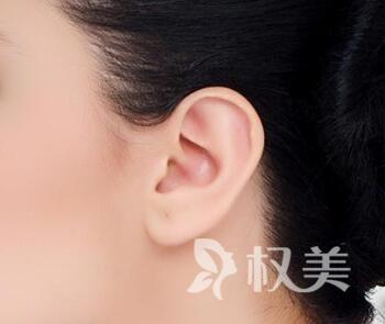 咸陽長城整形醫院全耳再造手術特點是什么  安全性怎么樣