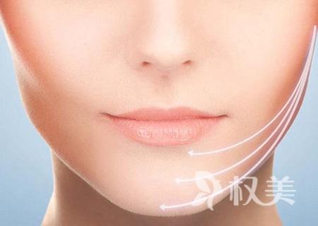 北京八大处整形医院下颌角整形效果好吗 适合哪些人
