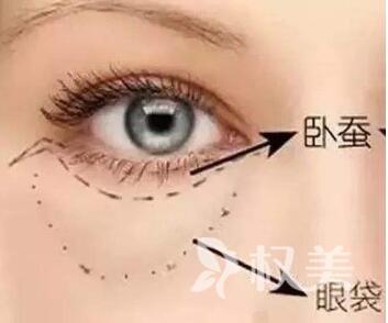 信阳金霞整形医院内切去除眼袋能保持多久  术后如何保养