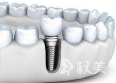 驻马店美兰德整形医院种植牙到底有什么优势呢  应该怎么样护理