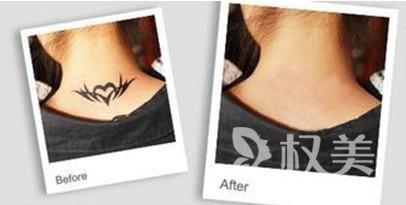 去纹身的价格贵不贵 荆州中心医院整形科激光去纹身怎么样 会不会留疤