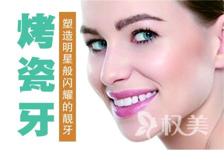 镍铬合金烤瓷牙安全吗 北京中诺口腔医院做烤瓷牙大概费用是多少