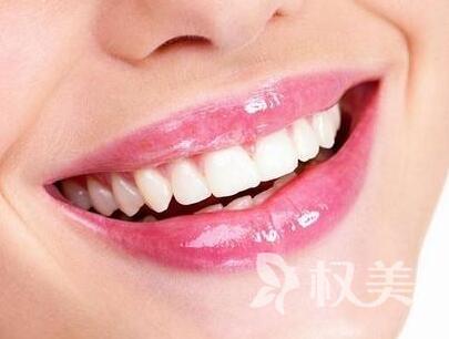 广州德伦口腔整形医院烤瓷牙要多少钱