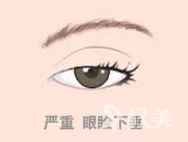 上眼皮轻度下垂恢复法  临沂V微整形医院上眼睑下垂矫正会反弹吗