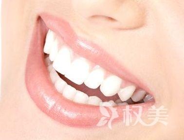 种植牙齿会痛吗 西安百思美口腔整形医院无痛种牙怎么样