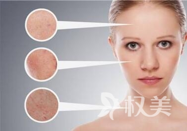 激光面部除皱效果可以保持多久  哈尔滨华美整形医院激光除皱需要多少钱