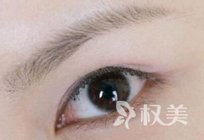 南京雍禾杨州主任技术怎么样  眉毛种植手术有哪些优势呢