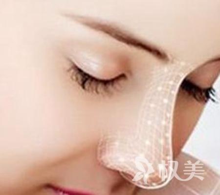 长沙隆鼻价格表 长沙丽都整形医院硅胶隆鼻多少钱