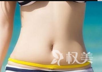 临沂东方美莱坞整形医院腰腹吸脂的优势  吸出迷人小蛮腰