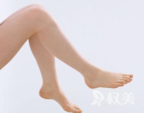 如何拥有纤细美腿 南方医院整形美容外科小腿抽脂多少钱