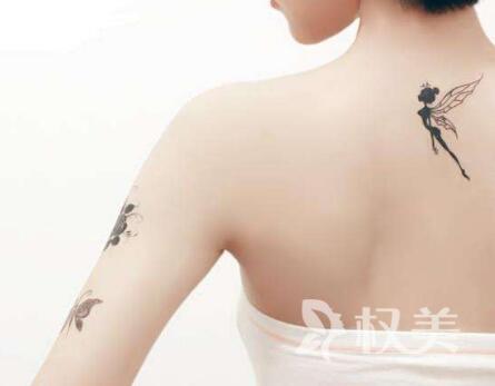 青岛南区铭医整形医院激光去纹身能彻底洗干净吗