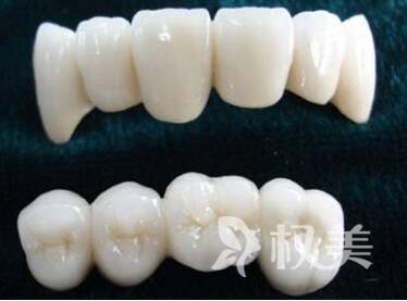 烤瓷牙和全瓷牙有什么区别  西安百思美口腔医院做烤瓷牙需要多少钱