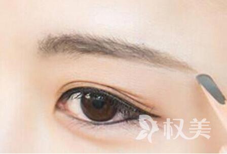 深圳眉毛种植哪里好 眉毛种植安全吗 多少钱