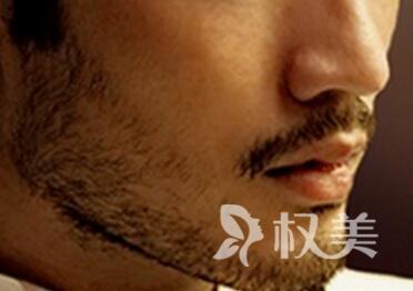 福州雍禾植发医院胡须种植的优势  给你男性成熟魅力