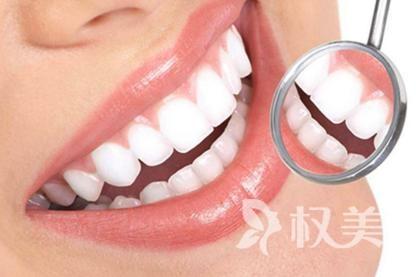 西安黄牙怎么治 西安牙齿美白哪家好 价格大概是多少