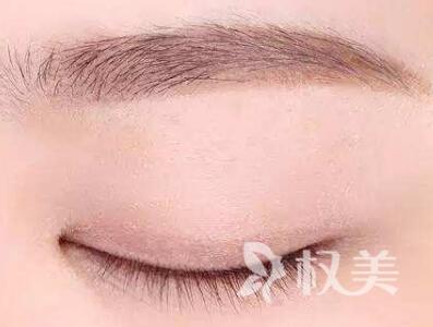 武汉雍禾植发医院植眉毛价格表 眉毛种植大概需要多少钱