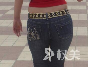如何瘦臀部和大腿 湘潭爱思特整形医院臀部吸脂多久见效