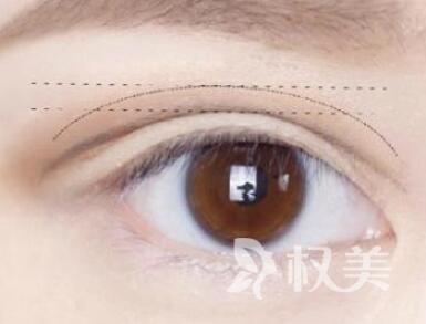 割双眼皮有什么危害性 株洲华美整形医院割双眼皮怎么样