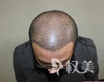头顶的头发少怎么办 西安碧莲盛植发医院头发种植价格