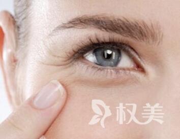眼角纹怎么消除 连云港东方医院整形科激光去眼角纹效果好吗