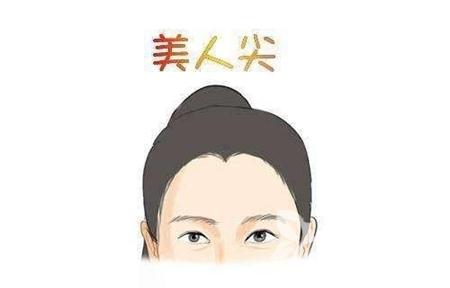 南京科发源植发怎么样 种植美人尖大概要多少钱