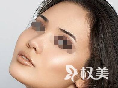 怎么祛除痘疤 北京圣慈美容整形医院激光祛痘疤怎么样