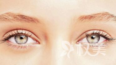 埋线双眼皮的优点 埋线双眼皮多久恢复