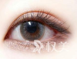 切开双眼皮手术的特点,切开双眼皮多长时间恢复